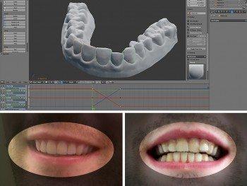 Insolite : Un étudiant en design fabrique lui-même son traitement orthodontique