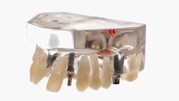 Après une inspection, L'ANSM retire du marché des implants dentaires