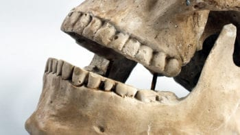 Une dent trahit une épidémie de peste de 4900 ans