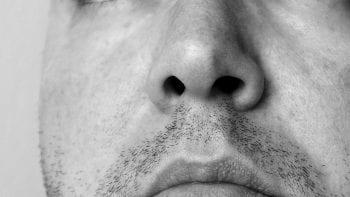 Patient hors norme : une dent pousse dans son nez