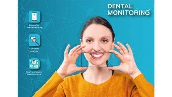 Dental Monitoring s'associe à Vitruvian pour accélérer l'expansion mondiale de ses solutions d'IA innovantes