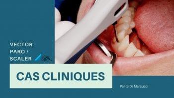 Traitement parodontal avec VECTOR PARO Dürr Dental : Exemples de cas cliniques