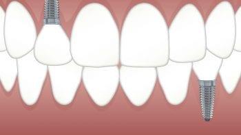 Des implants dentaires présentés comme fabriqués par Edison Medical, retirés du marché