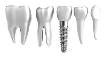 Des implants anatomiques qui reconstituent une vraie dent