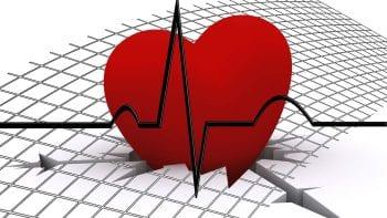 Maladie cardiaque et santé bucco-dentaire