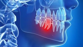 COVID-19 : un numéro national mis en place pour les urgences dentaires